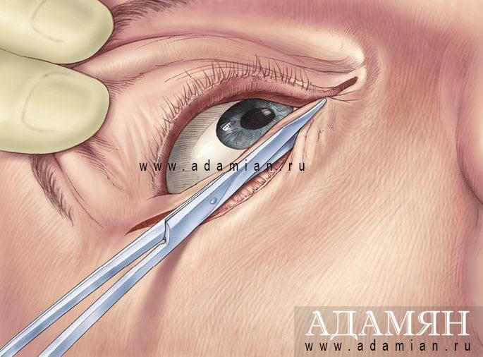 Грыжа нижних век глаз: как убрать без операции