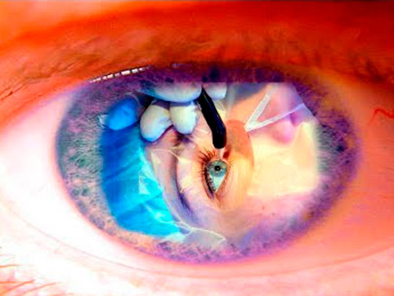 Чистка хрусталика глаза лазером эффективность отзывы