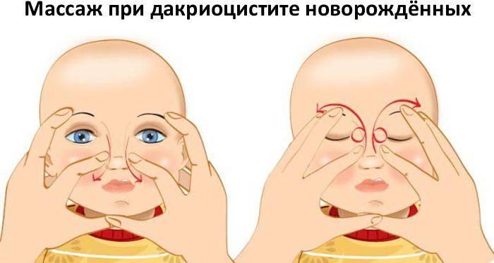 Как правильно делать массаж слёзного канала у новорождённых
