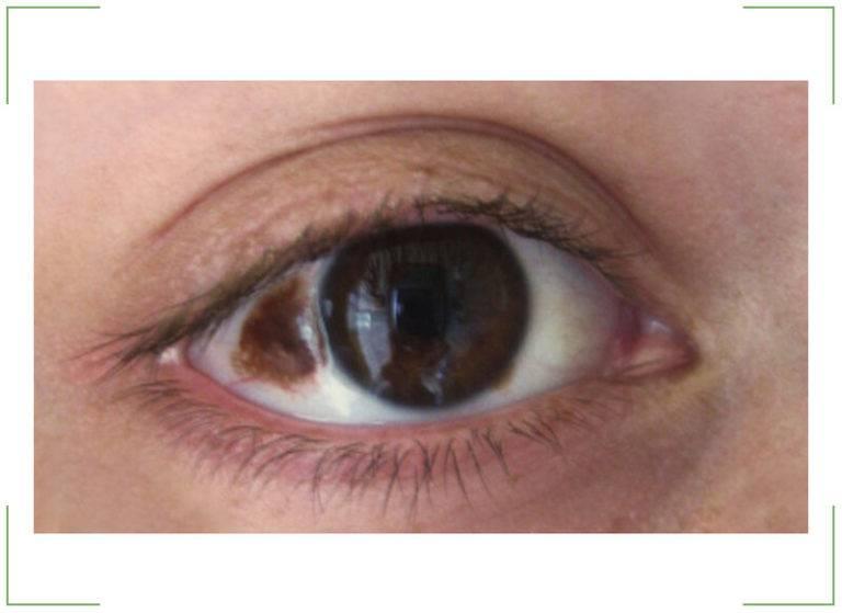 Родинка в глазу: невус хориоидеи и конъюнктивы глаза, значение