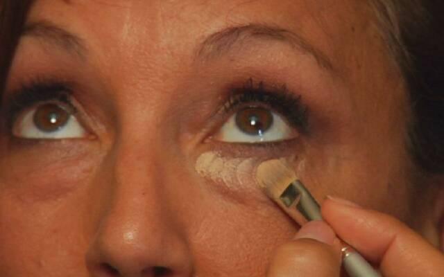Как быстро избавиться от синяка и опухоли под глазом | знать про все