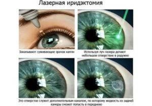 Лазерная иридэктомия: лечение глаукомы, как проводится, послеоперационный период и реабилитация