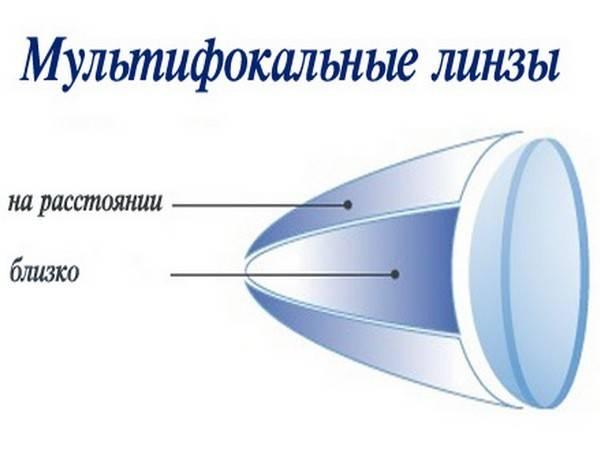 Бифокальные контактные линзы - что это, подбор