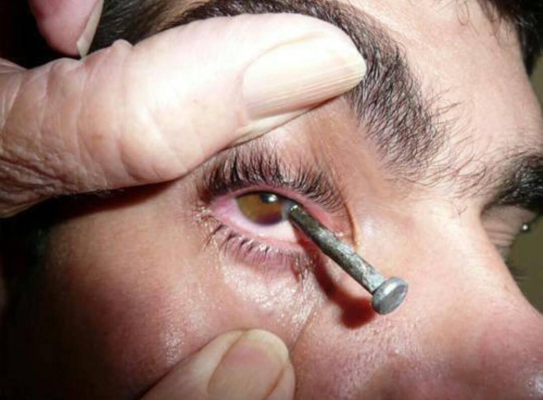 Как достать окалину из глаза в домашних