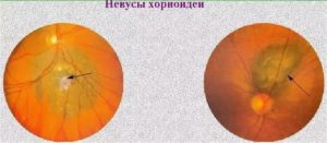Невус хориоидеи глаза: лечение, прогноз, удаление