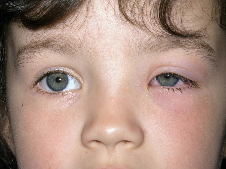 Конъюнктивит у детей: лечение, как быстро вылечит, капли и народные средства
