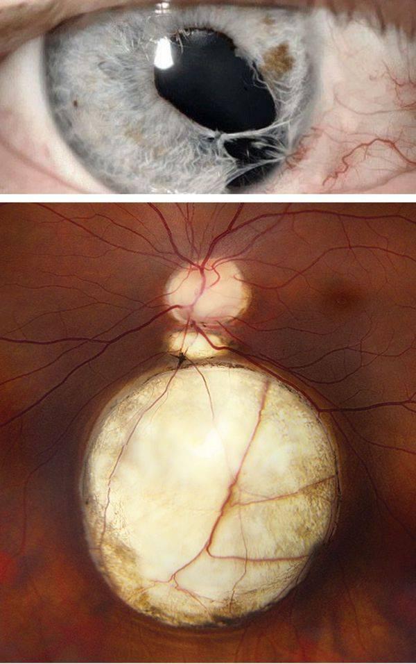 Колобома сосудистой оболочки глаза: причины, симптомы и лечение