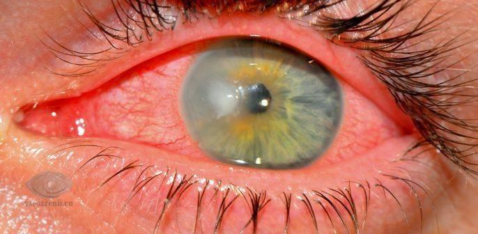 Почему порвалась линза для глаз и что нужно делать, если это произошло? - мед-инфо
