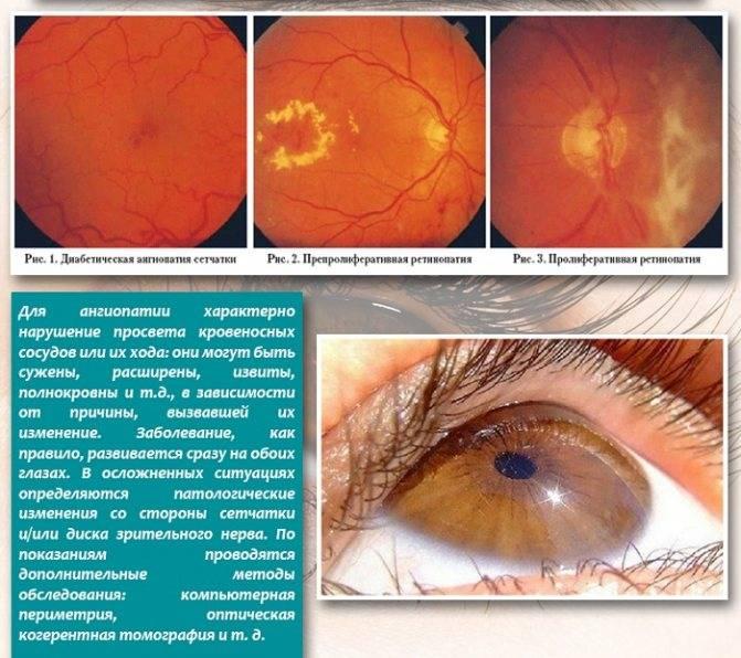 Что такое ангиосклероз сетчатки глаза, как лечить заболевание
