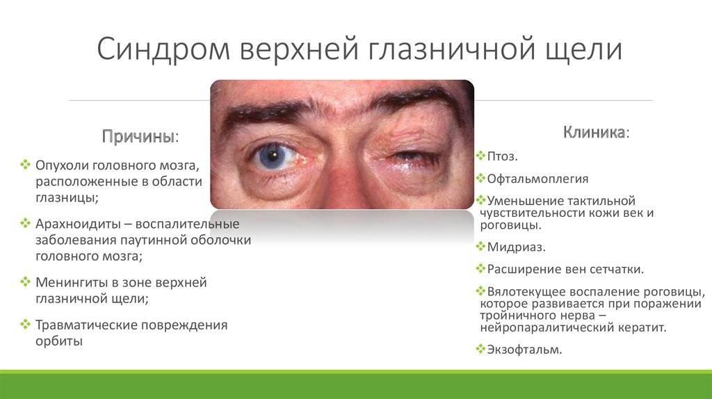 Болезненная офтальмоплегия. офтальмоплегия, диагностика и лечение