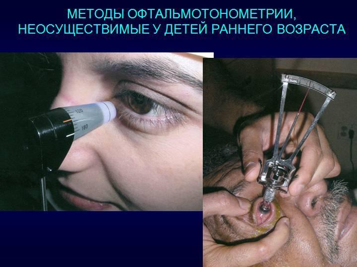 Тонометрия глаза: норма вгд, как проводится бесконтактное, аппланационное и суточное исследование, расшифровка результатов