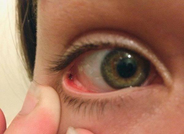 Окалина-стружка железная в глазу: что делать, как вытащить