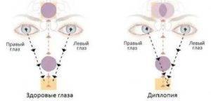Двоится в глазах (диплопия): причины и лечение, что делать в домашних условиях