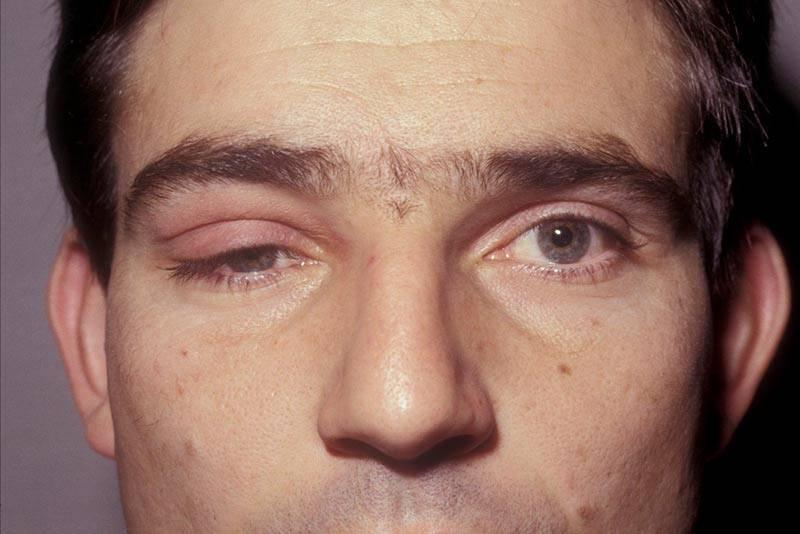 Миопатия: что это такое, симптомы и лечение лекарствами, диагностика, причины возникновения