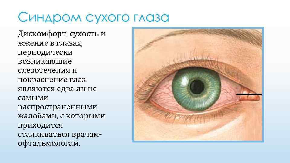 Сухость век у ребенка причины. синдром сухого глаза у ребенка: симптомы и лечение. методы лечения синдрома сухого глаза