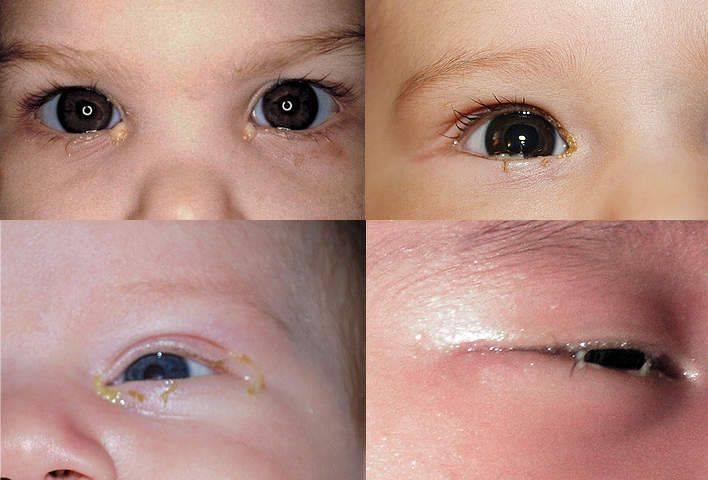 Опухшие глаза у новорожденного: в чем причины и что делать, если у грудничка отекло верхнее или нижнее веко?