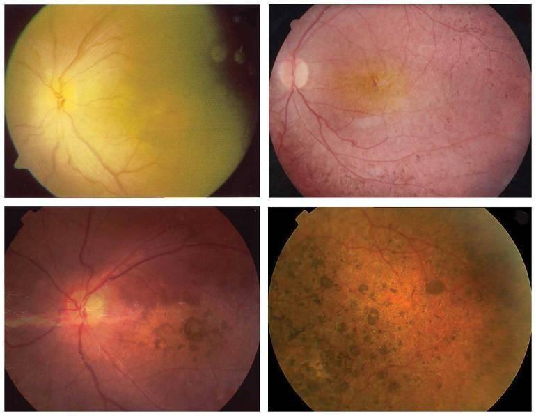 Периферическая дистрофия сетчатки: ретинальные дегенерации обоих глаз, след улитки или пвхрд, булыжная мостовая что это такое, пхрд