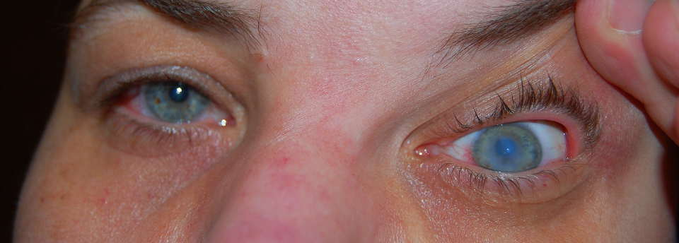 Кератоконус: что это такое, симптомы, группы, фото, острая стадия болезни глаз, причины возникновения, лечение, диагноз для армии