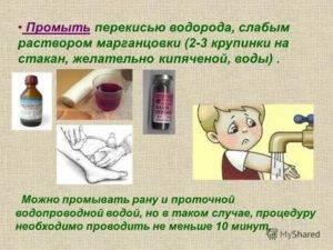 Как и чем правильно промывать глаза при конъюнктивите   мрикрнц.рф