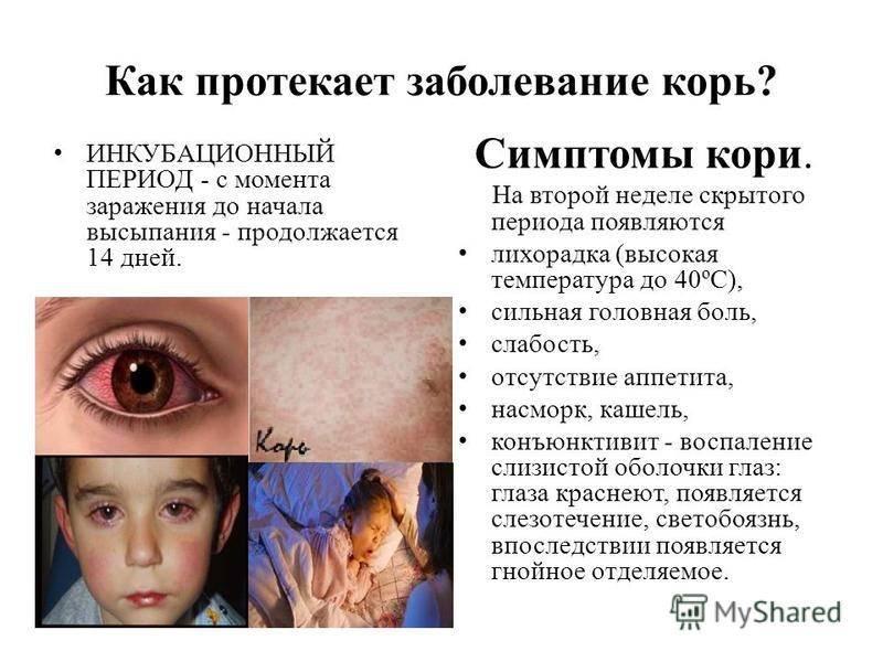 Светобоязнь глаз: причины у взрослого и ребенка, лечение боязни света, симптомы болезней, диагностика, профилактика фотофобии