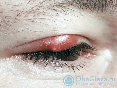 Не проходит ячмень на глазу - что делать, если ячмень не проходит месяц или неделю | медицинский портал spacehealth