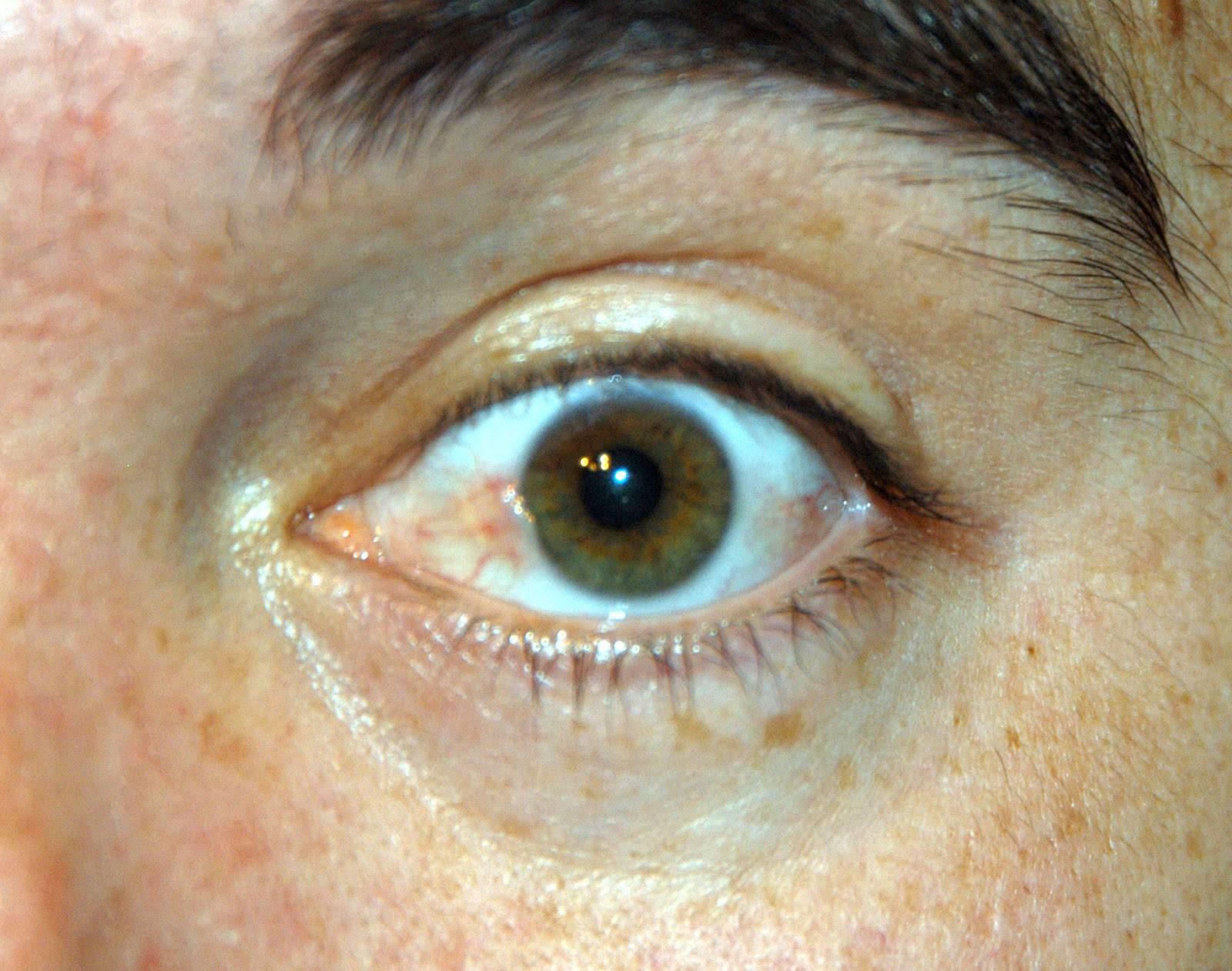 Птеригиум: лечение народными средствами, традиционная терапия для глаз