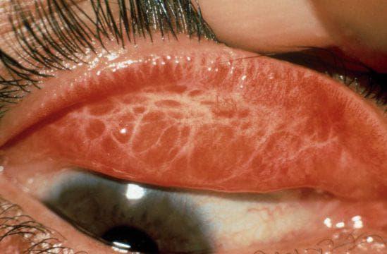 Трахома глаз - признаки заболевания и возможные осложнения