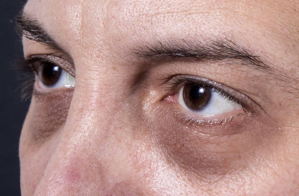 Круги, синяки и чернота под глазами у мужчин: причины