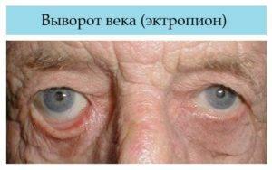 Заворот века у человека: симптомы, операция, фото верхнего и нижнего энтропиона у взрослых и детей