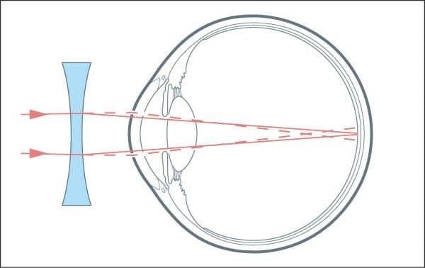 Очки для близорукости: когда назначают, как выбрать, носить, преимущества и недостатки