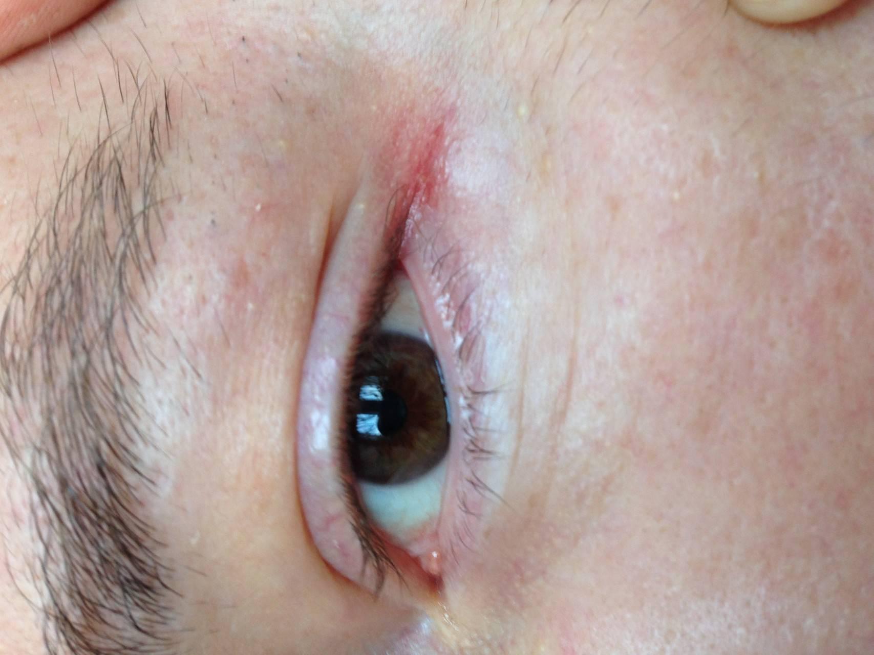 Сухость, краснота и трещинки в уголках глаз - причины, лечение