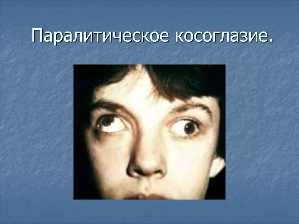 Сходящееся косоглазие: содружественное, альтернирующее, как лечить? | diagnos-med.ru