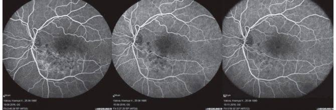 Показания, противопоказания, особенности проведения флуоресцентной ангиографии