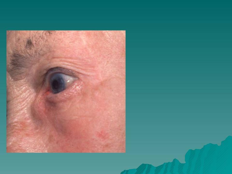 Воспаление слезного мешка: лечение в домашних условиях