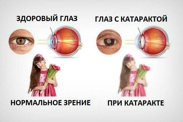 Заболевания зрения и глаз у детей