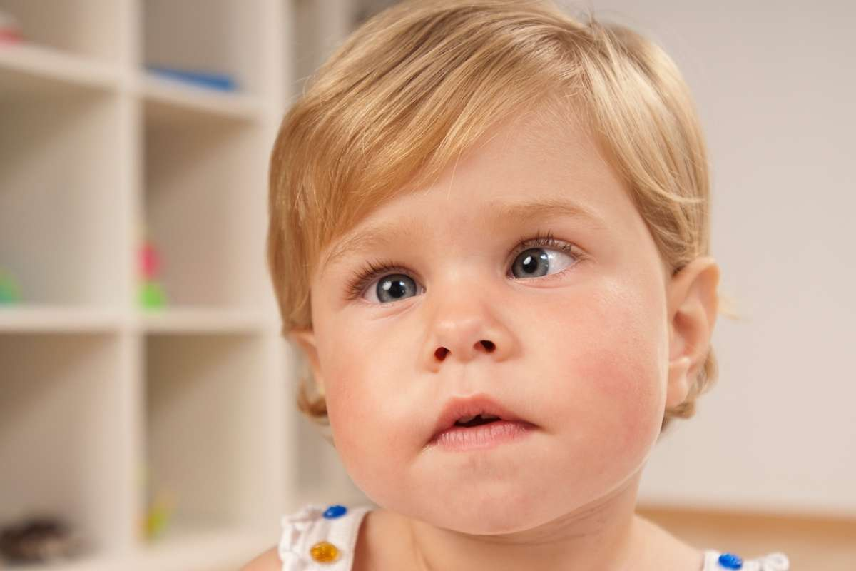 Амблиопия у ребенка