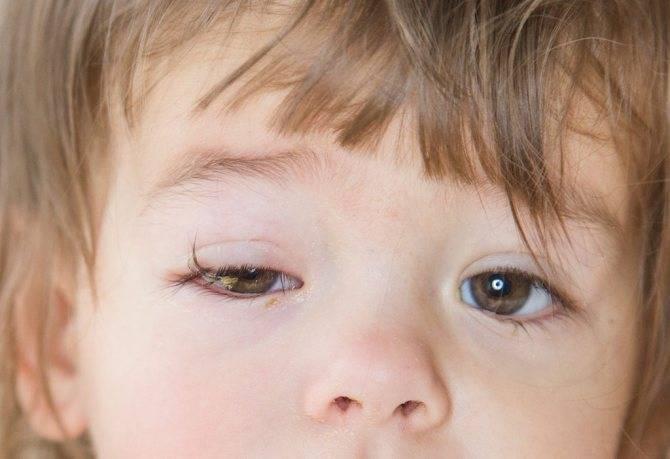 Гноятся глаза у ребенка: чем лечить, что делать в домашних условиях капли и мази, народные средства