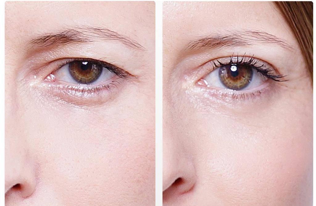 Впадают щеки: особенности, возможные причины, диагностика и последствия