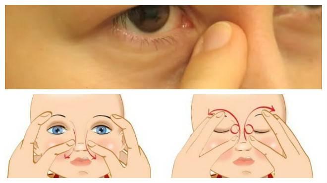 Дакриоцистит у новорожденных и его лечение: капли, массаж + видео - младенец