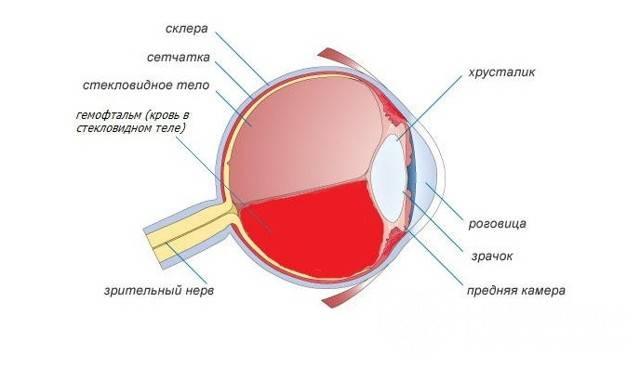 Кровоизлияние в стекловидное тело глаза лечение