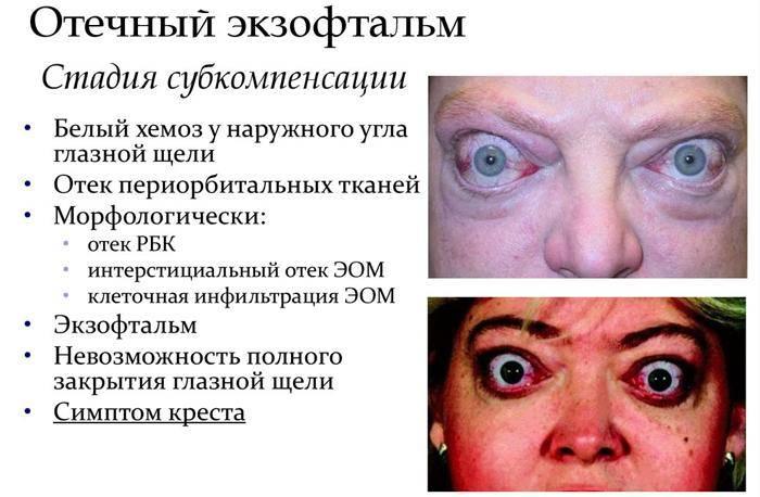 Отечный экзофтальм: лечение при тиреотоксикозе, пульсирующая, эндокринная и тиреотоксическая разновидности