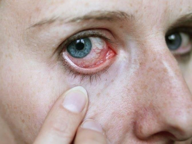 Опухоль глаза: симптомы, лечение и классификация