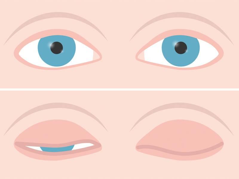 Болезнь когда глаза на выкате. лечиться ли болезнь выпученных глаз? лечение народными средствами