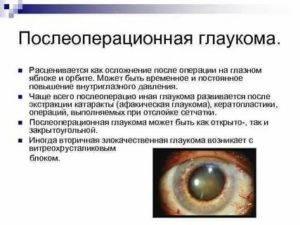 Лазерная иридотомия при глаукоме – особенности проведения операции — глаза эксперт