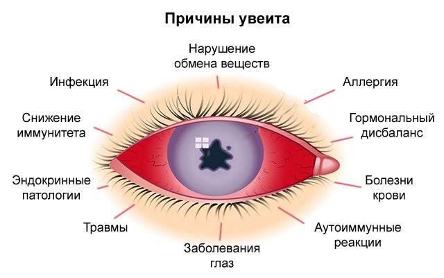 Увеит: обзор болезни