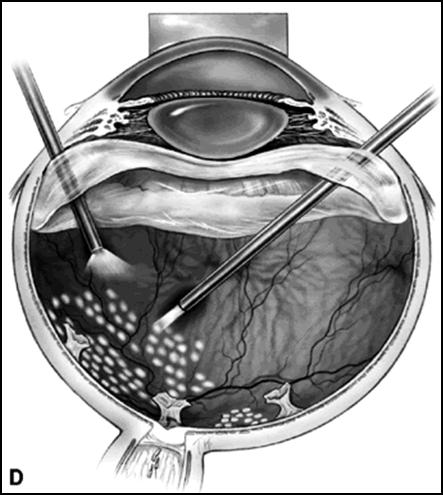 Восстановление зрения после витрэктомии