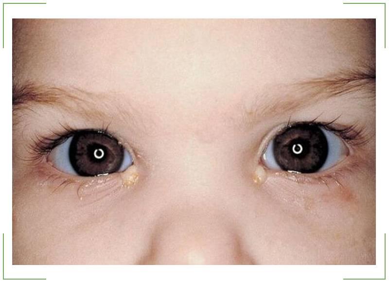 Конъюнктивит и температура у ребенка: что делать, может ли быть вместе с кашлем и насморком