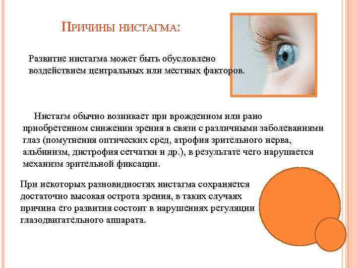 Особенности горизонтального нистагма, причины, симптомы, лечение