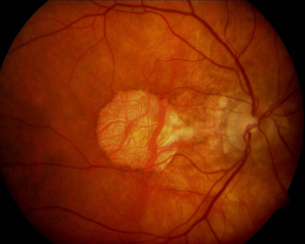 Разрыв сетчатки глаза - от чего бывает и как лечить патологию, ее причины и признаки, последствия и восстановление зрения