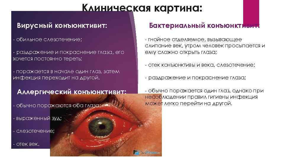 Чем опасен вирусный конъюнктивит? симптомы и лечение у взрослых